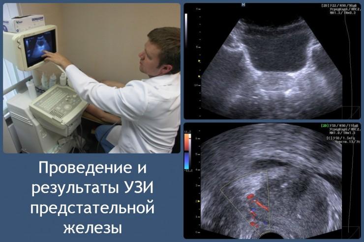 проведение и результаты УЗИ предстательной железы