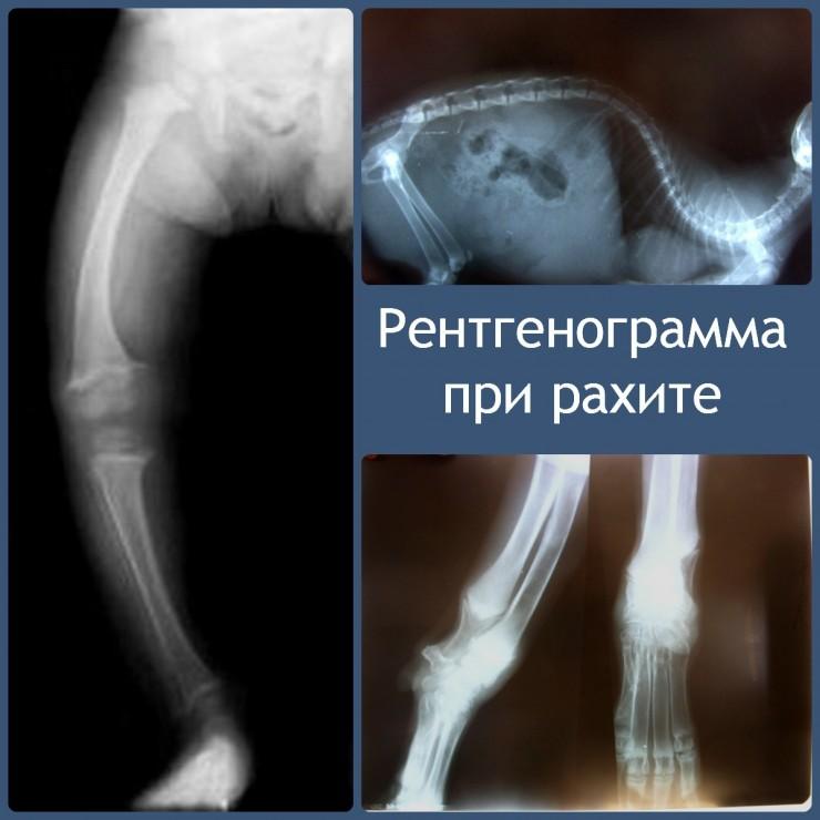 рентгенограммы при рахите