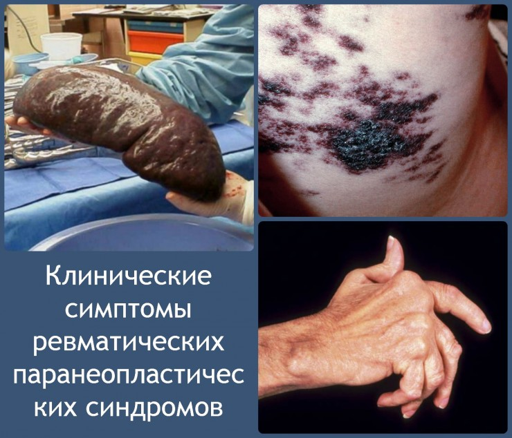 Клинические симптомы ревматических паранеопластических синдромов