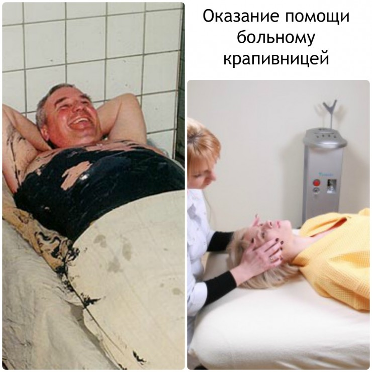 Оказание помощи больному крапивницей