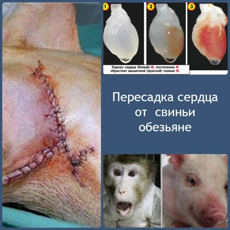 Пересадка сердца от свиньи обезьяне2