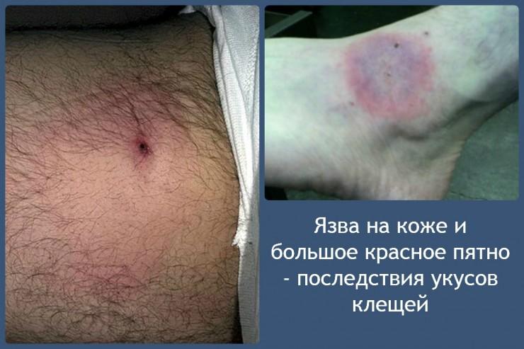 Язва на коже и большое красное пятно - последствия укусов клещей