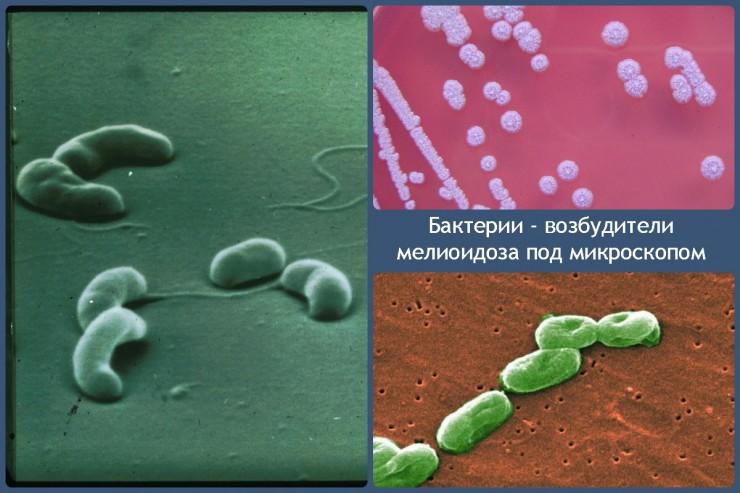 бактерии - возбудители мелиоидоза под микроскопом