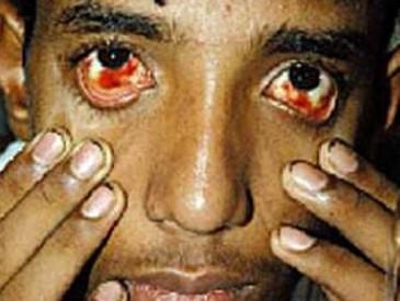 кровоизлияния в слизистые