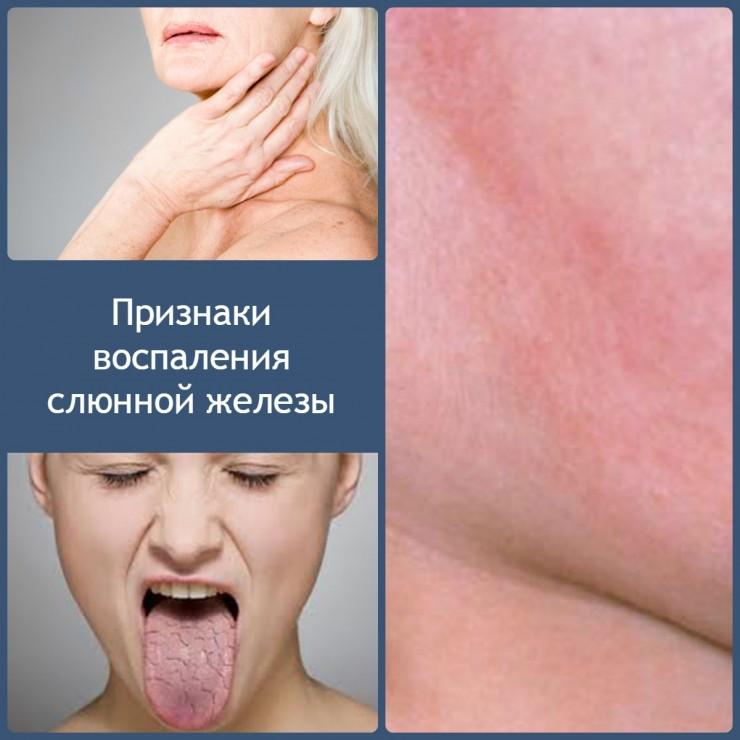Как лечить паротит заболевание слюнной железы мазь