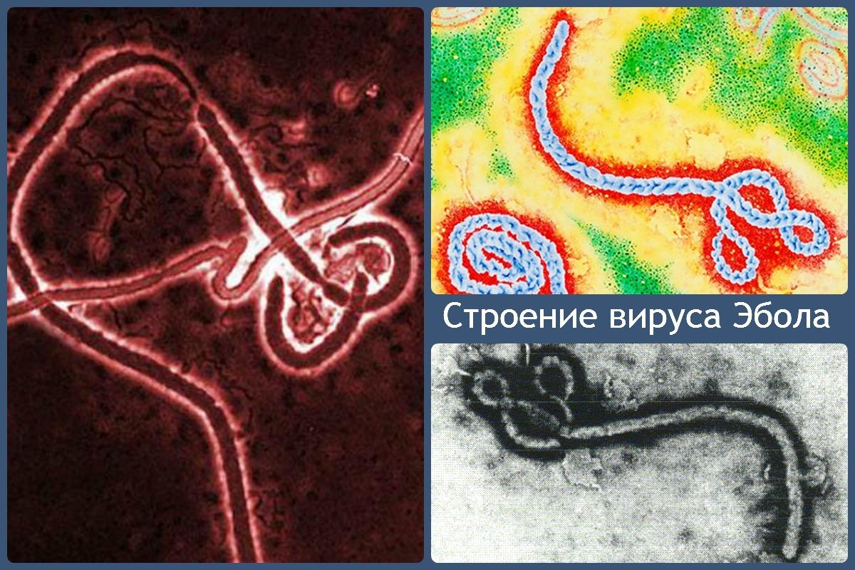 Лихорадка Эбола причины возникновения, основные симптомы, лечение и профилактика