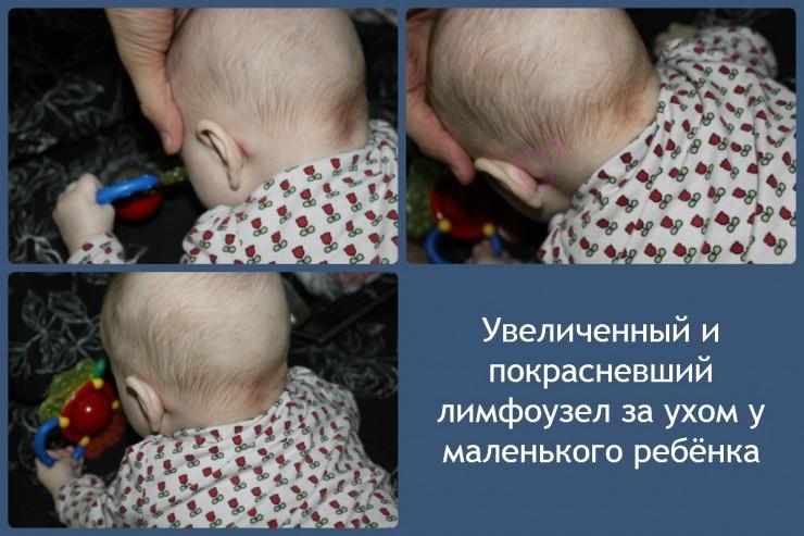 Увеличенный и покрасневший лимфоузел за ухом у маленького ребёнка