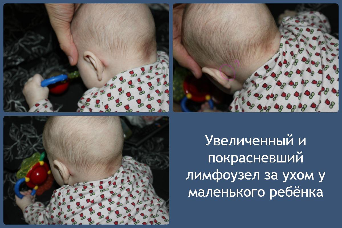 Остеомиелит что это такое у детей лечение