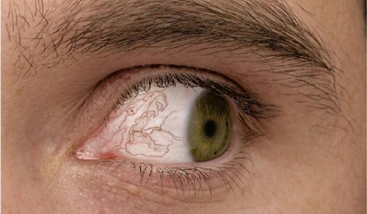 Больно смотреть вверх и в сторону угол глаза