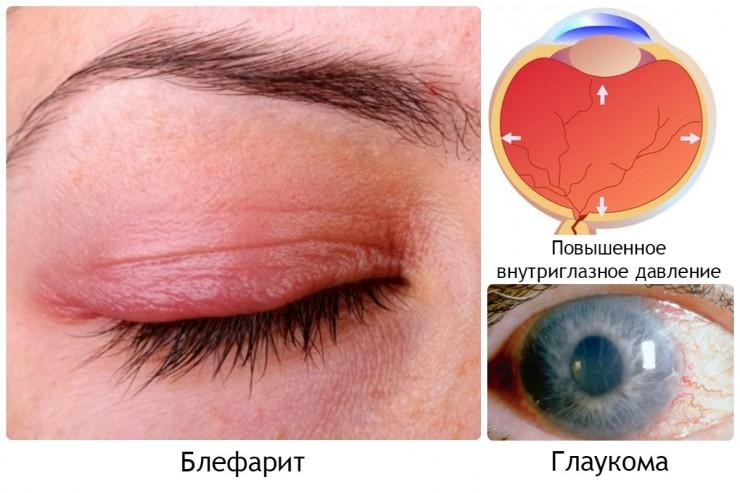 Разновидность заболеваний глаз
