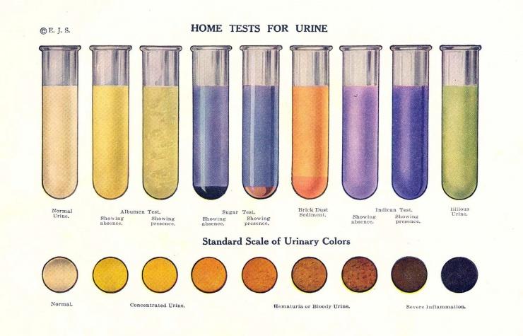 О чём говорит цвет мочи - схема (англ.)