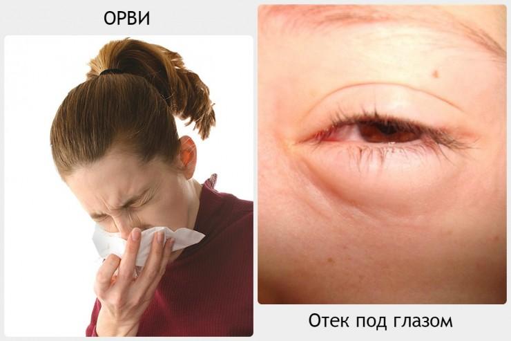 Причины не связанные с глазом