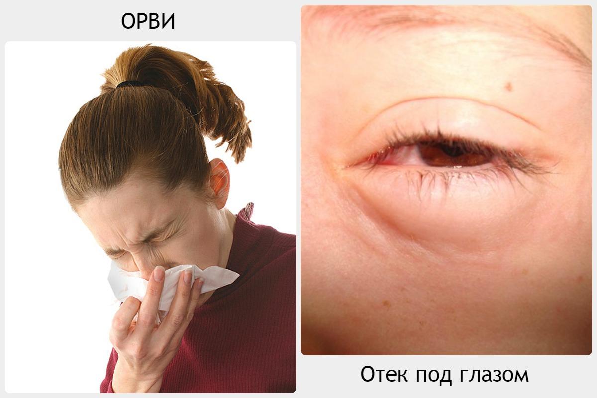 Как снять отёчность с глаз в домашних условиях 452