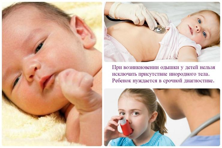 Отдышка у ребенка при простуде