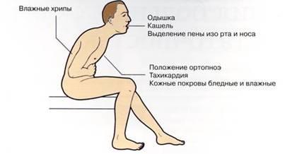 Вынужденное положение тела при приступе астмы