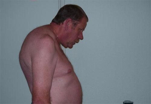 Боль внизу живота с левого бока при беременности