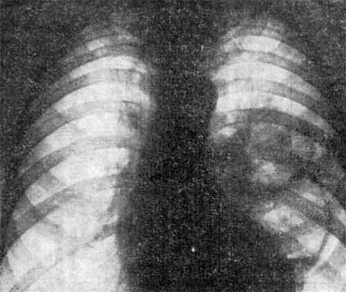 Сливная геморрагическая пневмония