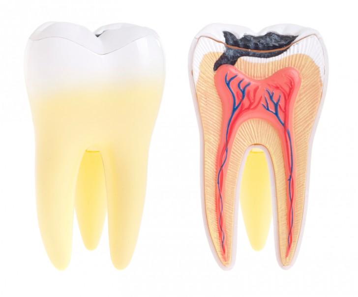 Кариес - основная причина зубной боли у детей