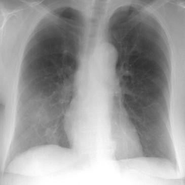Послеоперационная пневмония