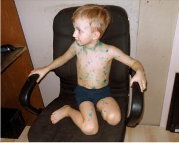 мальчик намазанный зеленкой