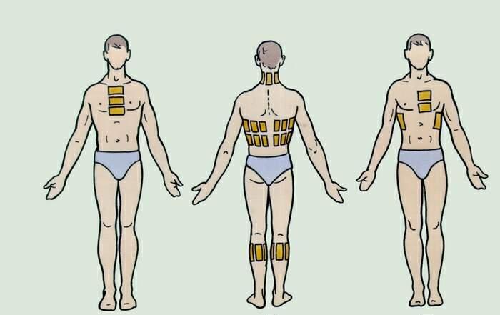 Схема наложения горчичников при бронхопневмонии