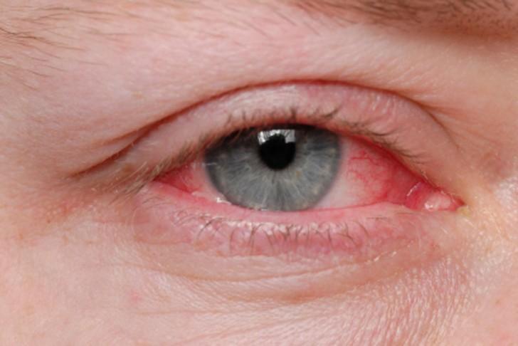Демодекоз на глазах