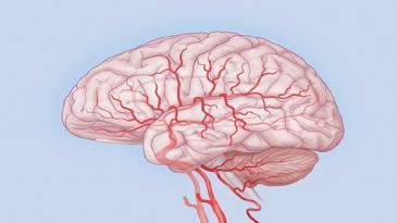 мозг в сетке сосудов