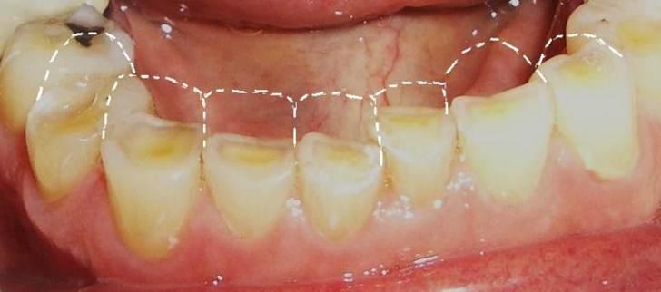 Сточеные зубы при бруксизме