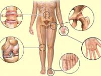 Суставы и кости