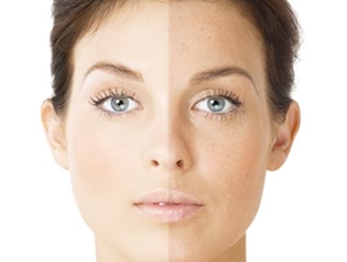 Как отбелить кожу на лицеы