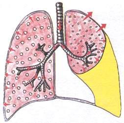 Лёгкие, в плевральной полости которых содержится большое количество жидкости
