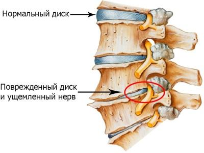 Самое эффективное средство от остеохондроза грудного отдела позвоночника