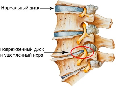 Картинка остеохондроза позвоночника