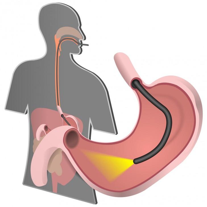 Дієта при грижі стравохідного отвору діафрагми