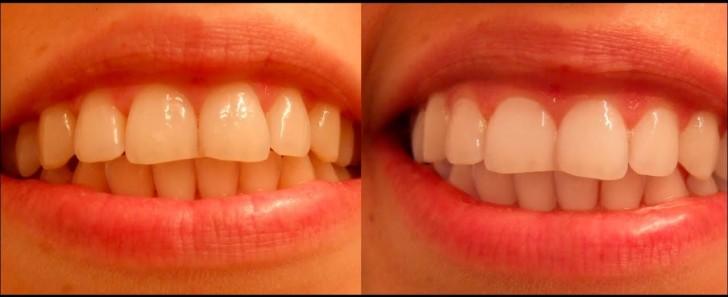 Результат отбеливания зубов маслом чайного дерева