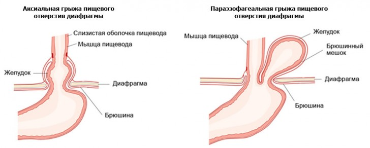 схемы расположенияаксиальной и параэзофагеальной грыж