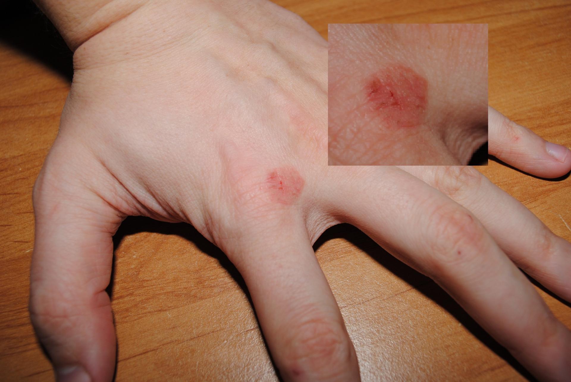 Аллергия на руках: причины появления и методы лечения