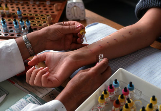 пробы на аллергию подготовка
