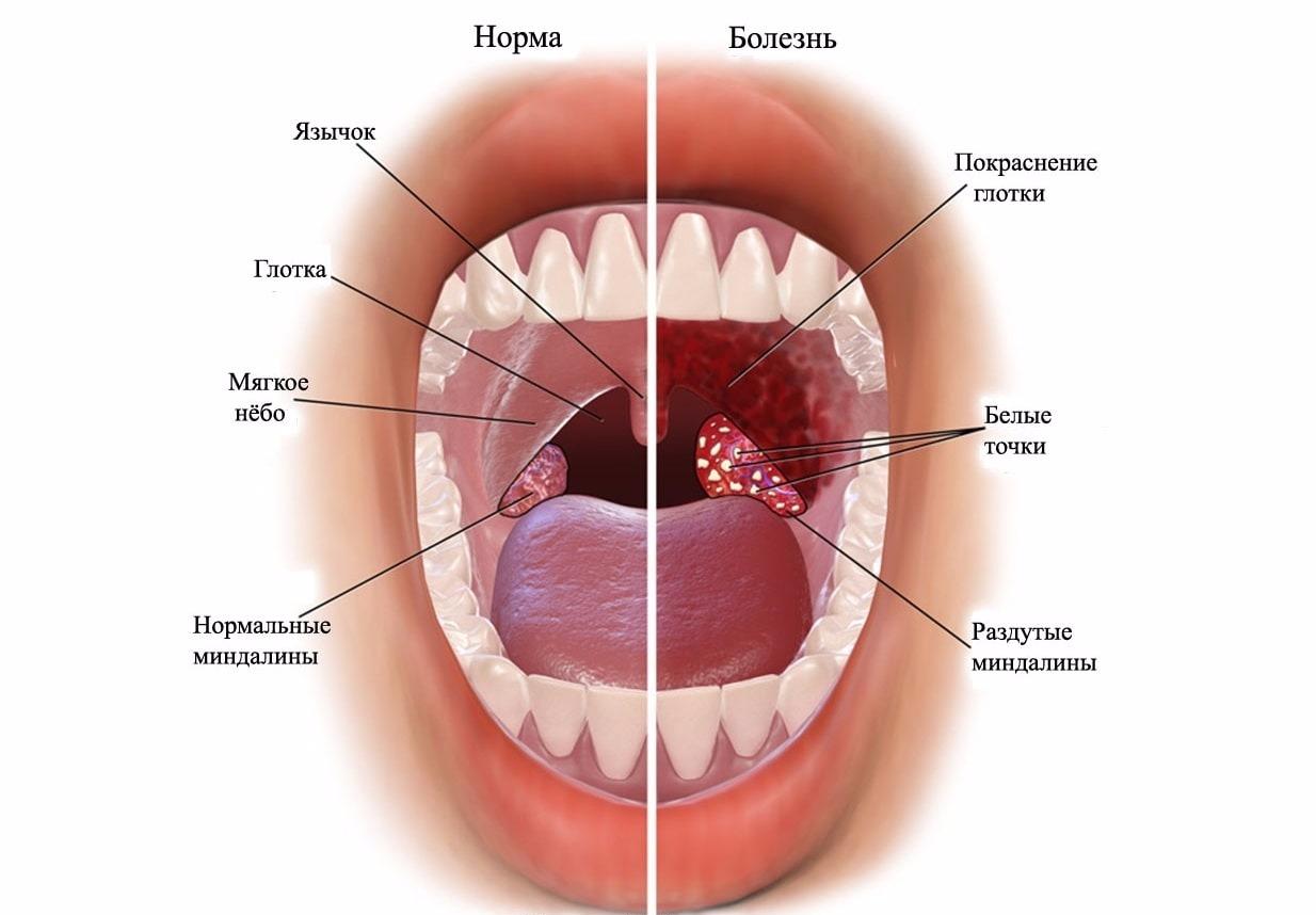 запах медикаментов изо рта