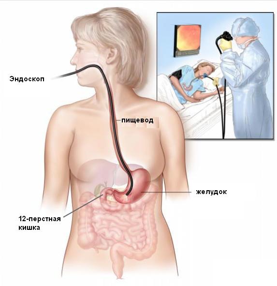 Фиброэзофагогастродуоденоскопия