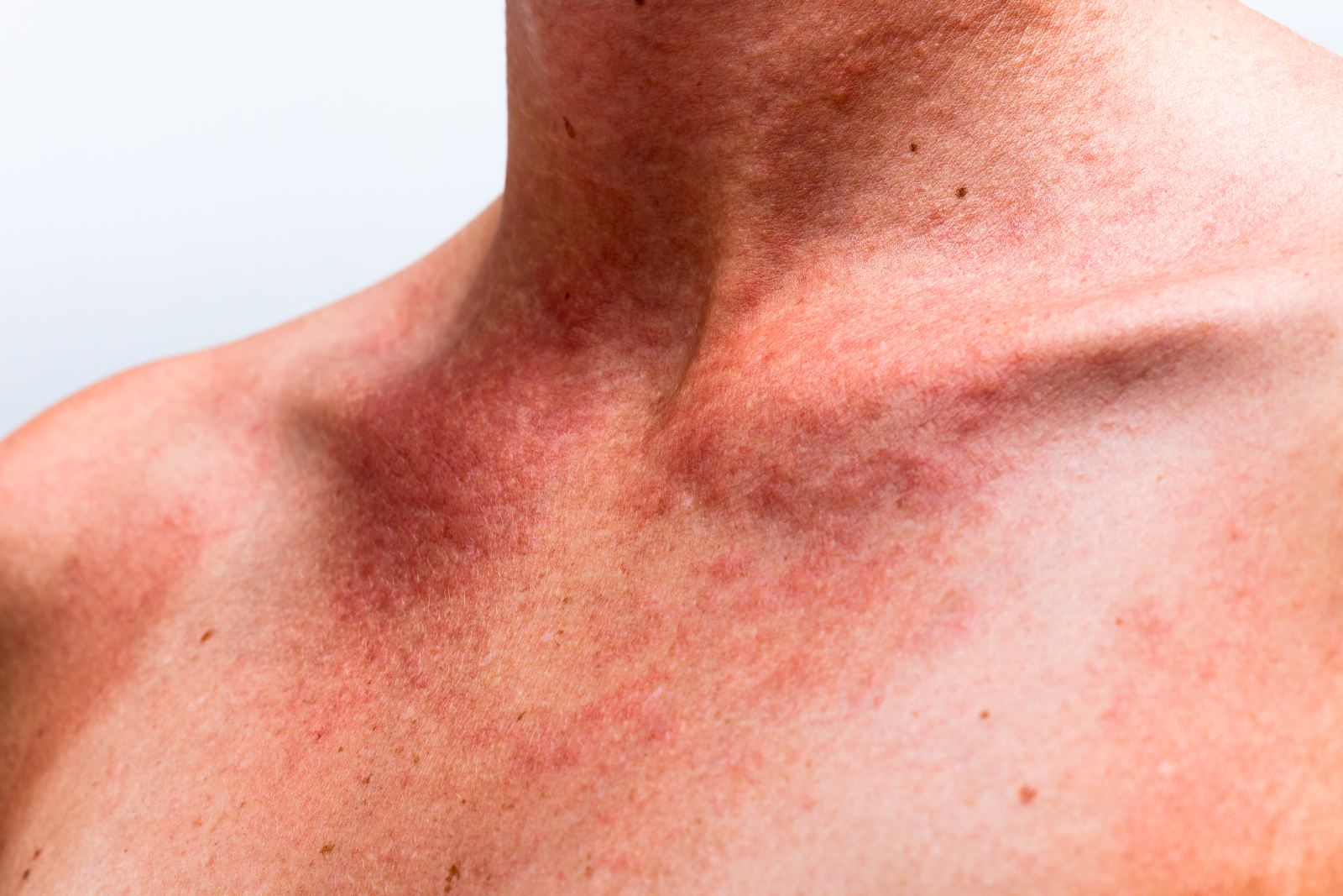 Признаки, симптомы и лечение тромбоцитопении народными средствами