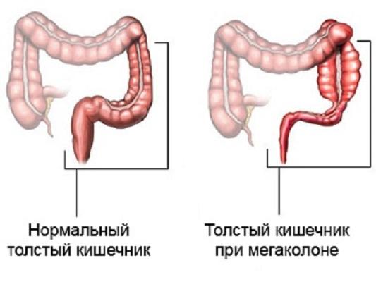 толстый кишечник примегаколоне