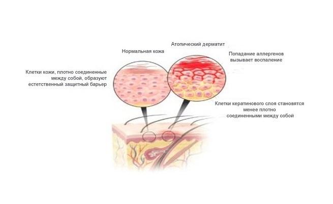 Атопический дерматит на шерсть