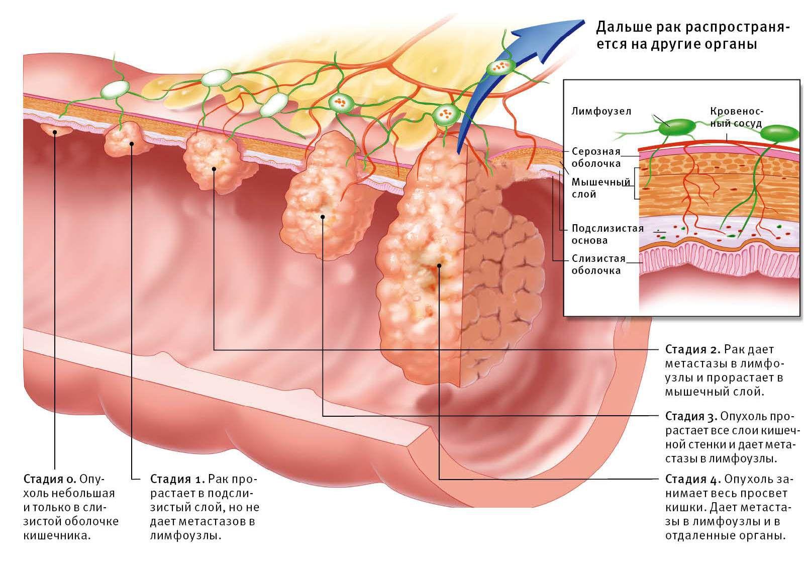 Лечение абсцесса после укола симптомы