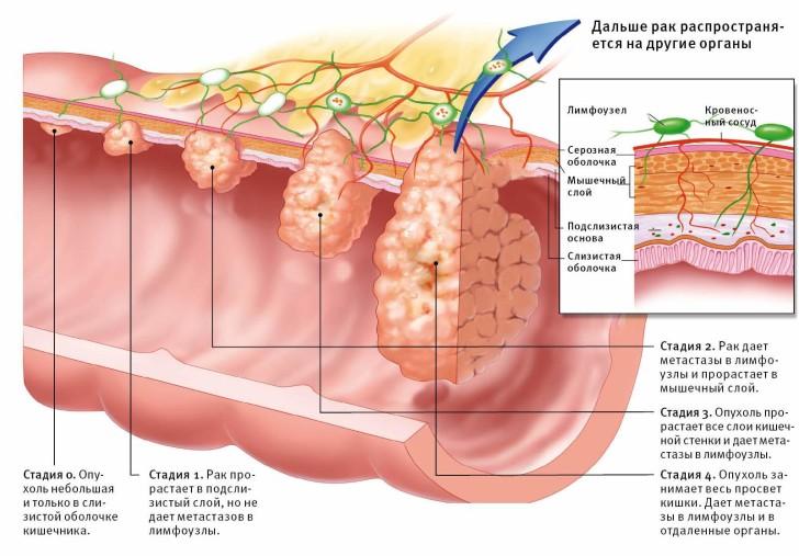 Стадии развития рака сигмовидной кишки