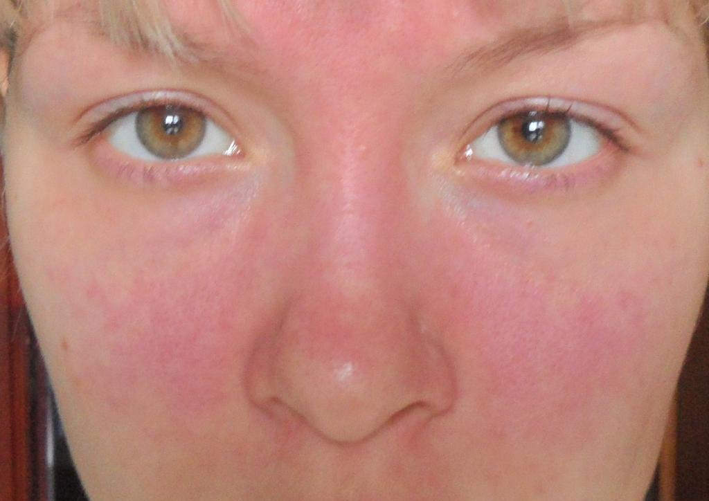 аллергия на магнезию при беременности