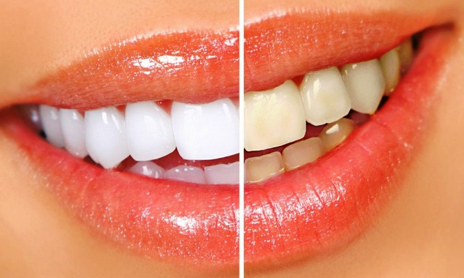 Зубы до и после процедуры