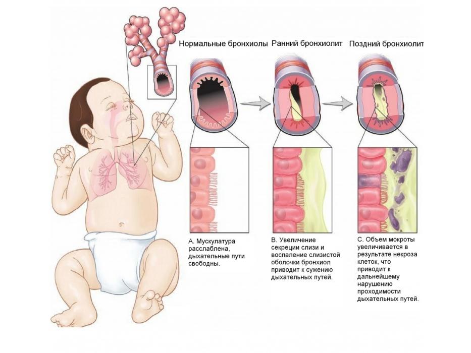 Чем и как лечить бронхит у трехлетнего ребенка