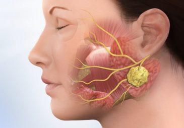 Симптомы  гнойно-воспалительных  процессов в полости  рта
