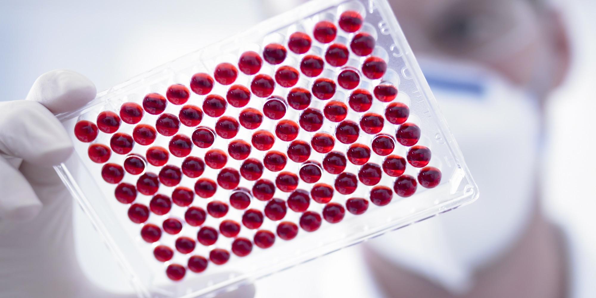Определить продолжительность жизни человека можно по его крови